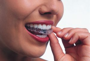 woman placing clear aligner into mouth